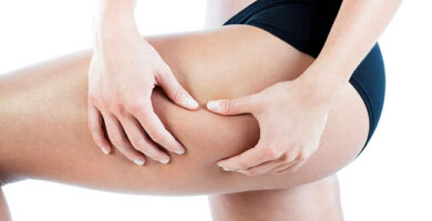 6 remedios naturales para eliminar la Celulitis